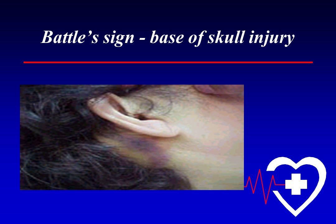 Battles sign - base of skull injury