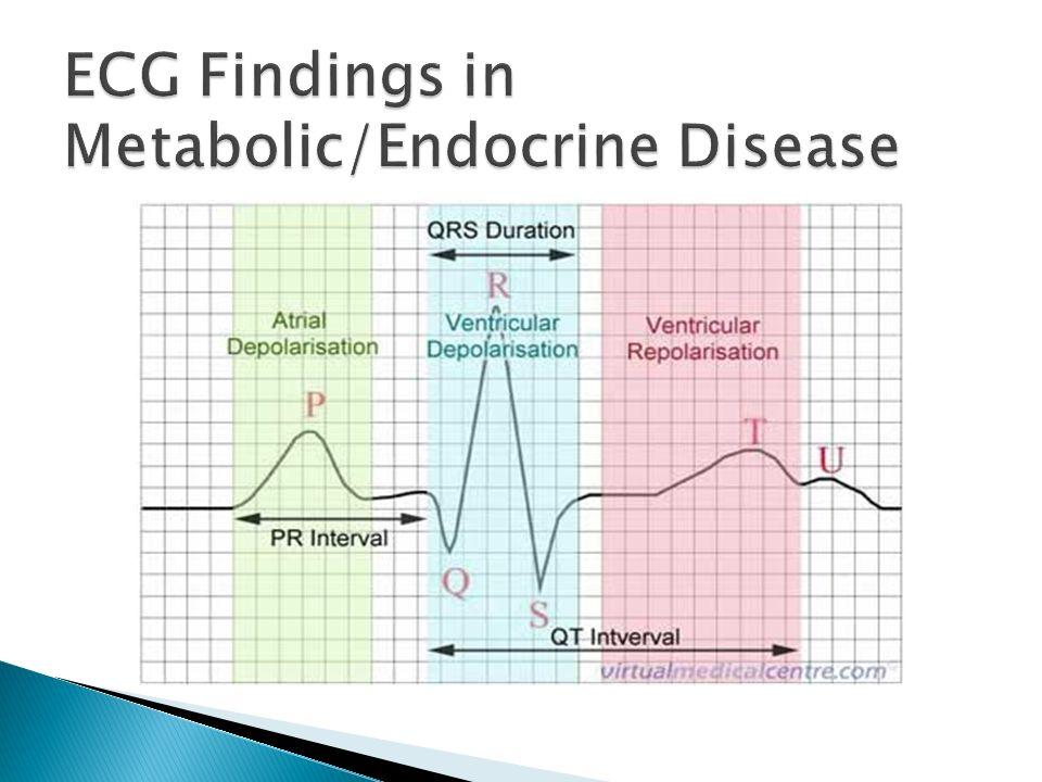 What are the classic ECG manifestations of pheochromocytoma???