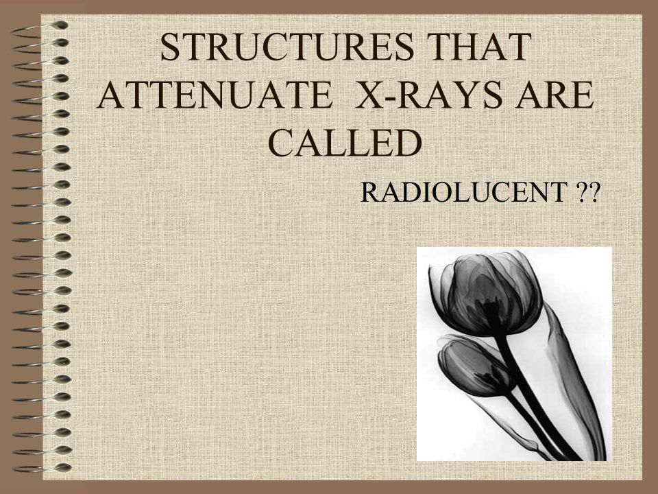 STRUCTURES THAT ATTENUATE X-RAYS ARE CALLED RADIOLUCENT ??