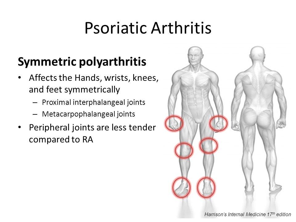 Psoriatic Arthritis Symmetric polyarthritis Affects the Hands, wrists, knees, and feet symmetrically – Proximal interphalangeal joints – Metacarpophal