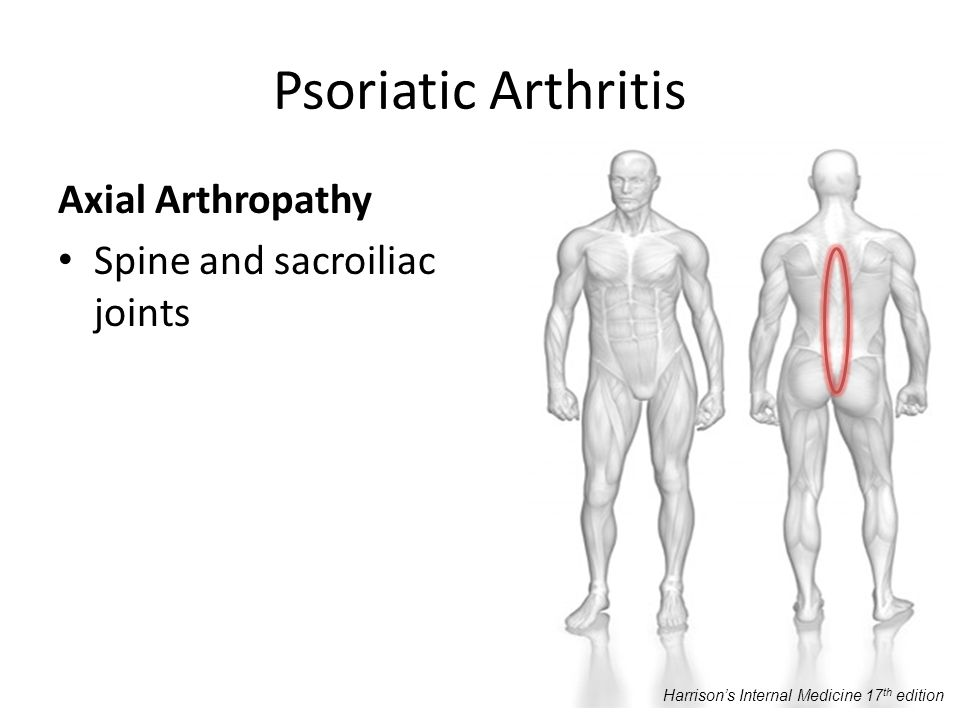 Psoriatic Arthritis Axial Arthropathy Spine and sacroiliac joints Harrisons Internal Medicine 17 th edition