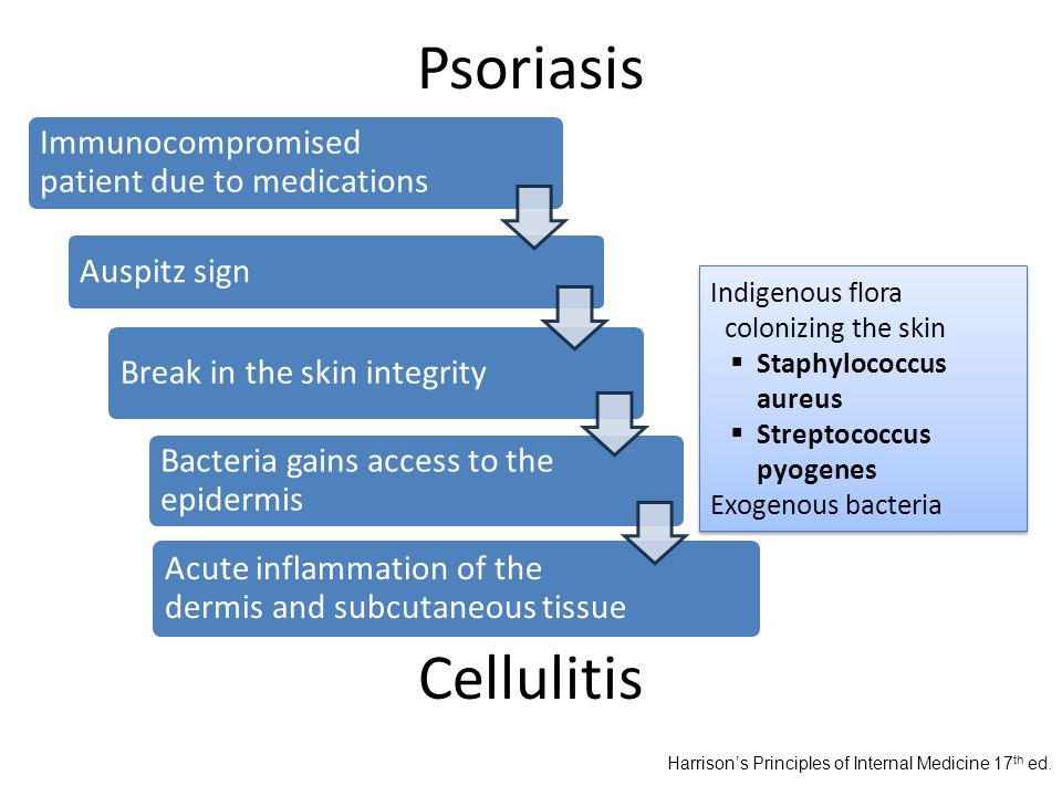 Psoriasis Immunocompromised patient due to medications Auspitz sign Break in the skin integrity Bacteria gains access to the epidermis Acute inflammat