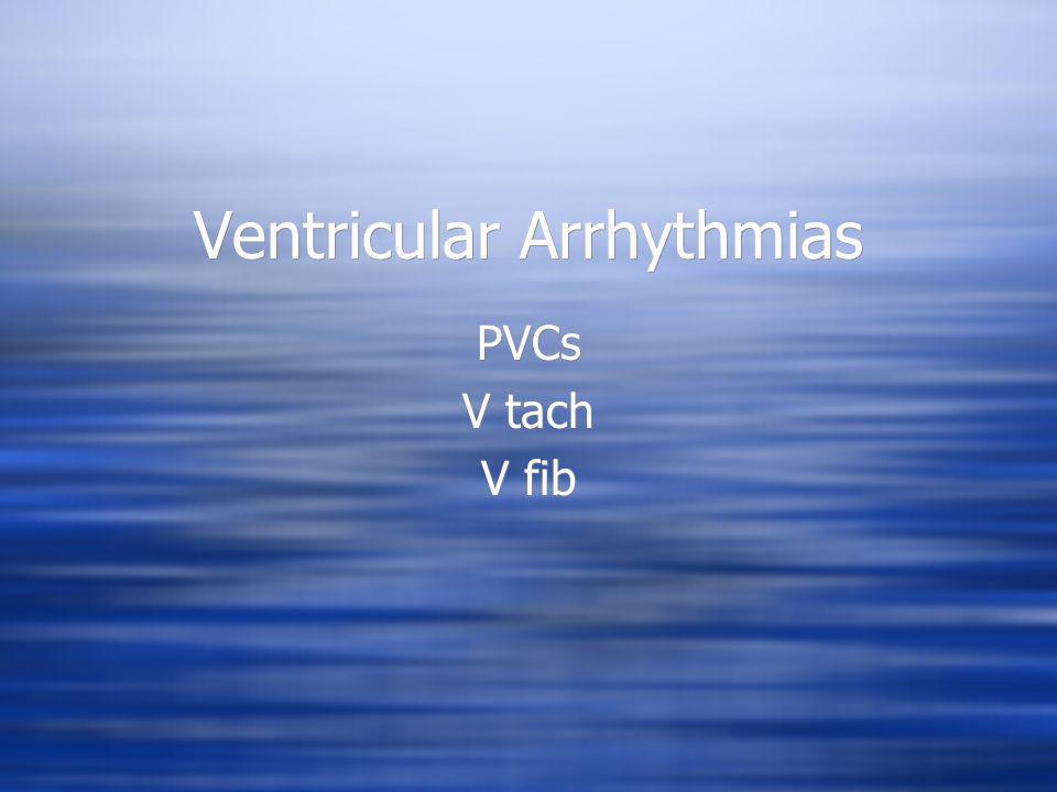 Ventricular Arrhythmias PVCs V tach V fib PVCs V tach V fib