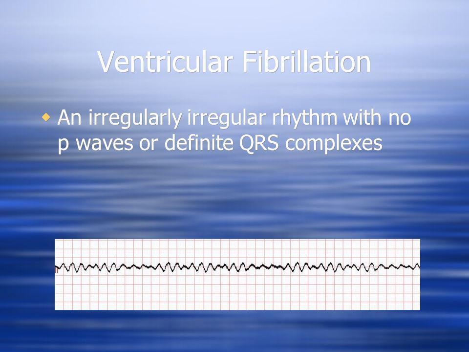 Ventricular Fibrillation An irregularly irregular rhythm with no p waves or definite QRS complexes