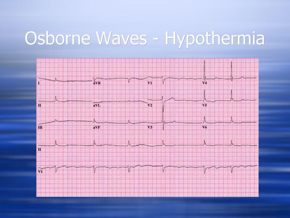 Osborne Waves - Hypothermia