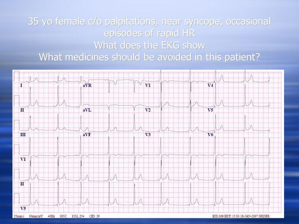 35 yo female c/o palpitations, near syncope, occasional episodes of rapid HR What does the EKG show What medicines should be avoided in this patient?