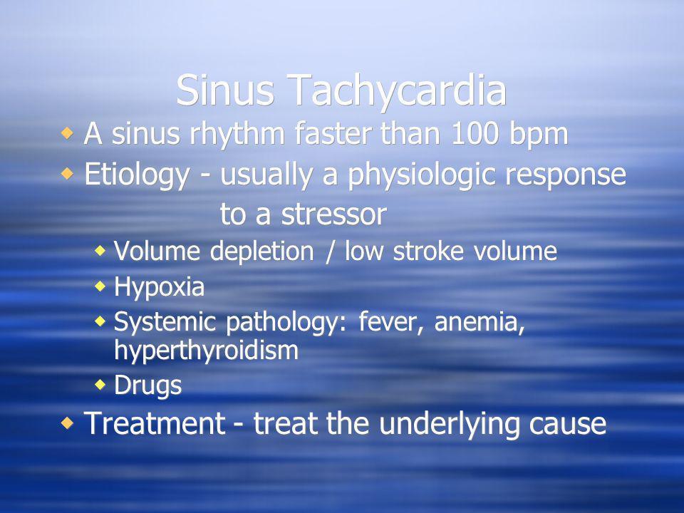 Sinus Tachycardia A sinus rhythm faster than 100 bpm Etiology - usually a physiologic response to a stressor Volume depletion / low stroke volume Hypo