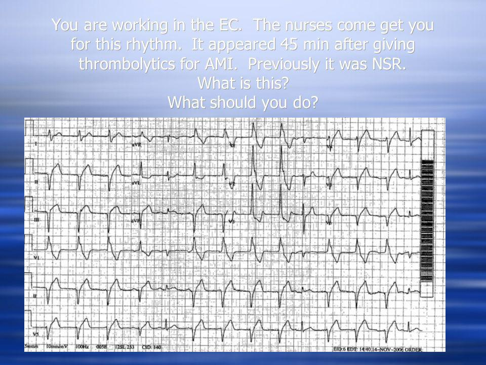 You are working in the EC. The nurses come get you for this rhythm. It appeared 45 min after giving thrombolytics for AMI. Previously it was NSR. What
