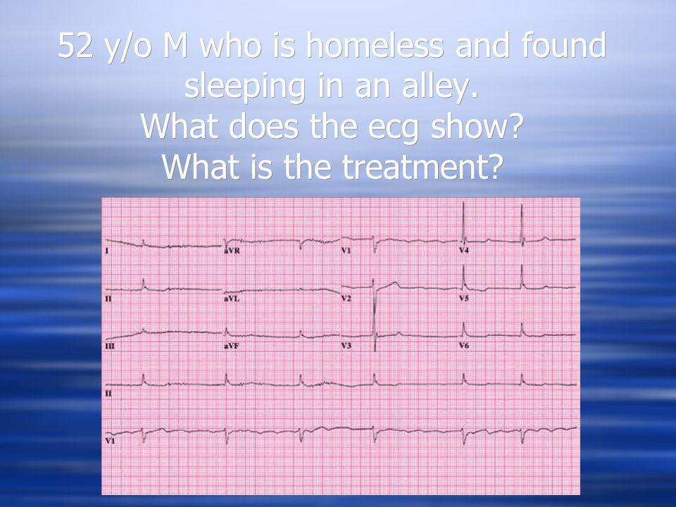 52 y/o M who is homeless and found sleeping in an alley. What does the ecg show? What is the treatment?