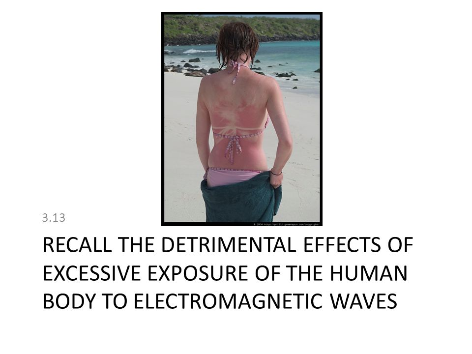 RECALL THE DETRIMENTAL EFFECTS OF EXCESSIVE EXPOSURE OF THE HUMAN BODY TO ELECTROMAGNETIC WAVES 3.13