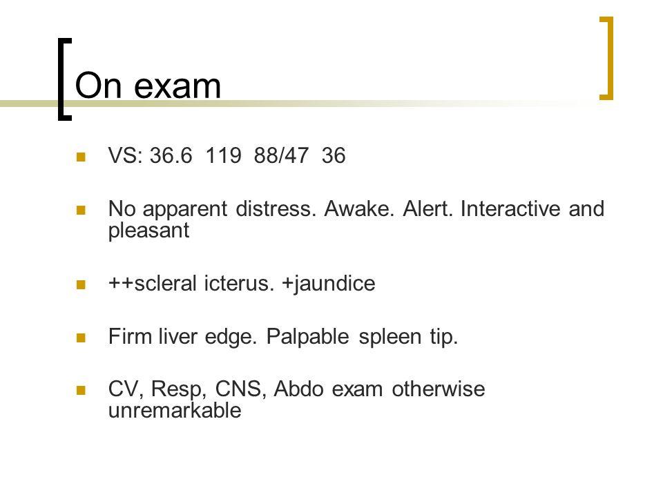 On exam VS: 36.6 119 88/47 36 No apparent distress. Awake. Alert. Interactive and pleasant ++scleral icterus. +jaundice Firm liver edge. Palpable sple