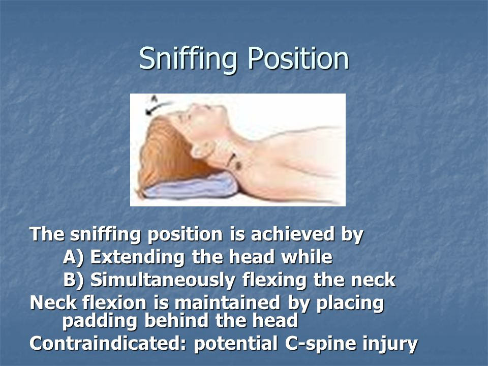 Sniffing Position The sniffing position is achieved by A) Extending the head while A) Extending the head while B) Simultaneously flexing the neck B) S