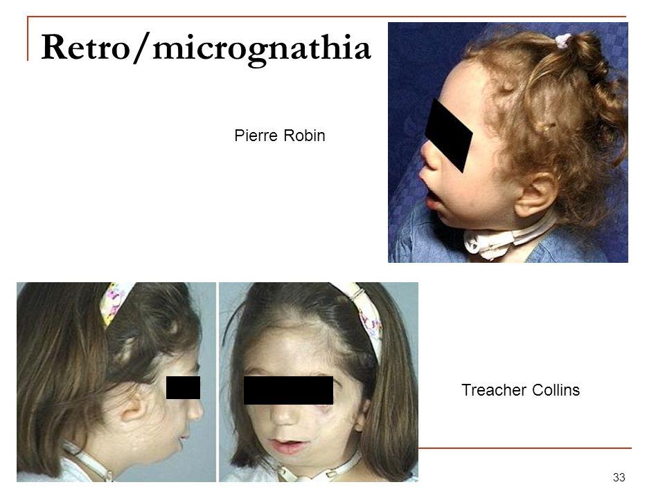33 Retro/micrognathia Pierre Robin Treacher Collins