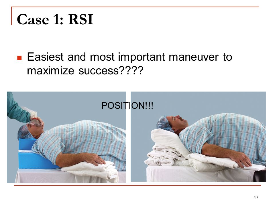 47 Case 1: RSI Easiest and most important maneuver to maximize success???? POSITION!!!