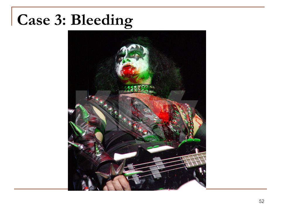 52 Case 3: Bleeding