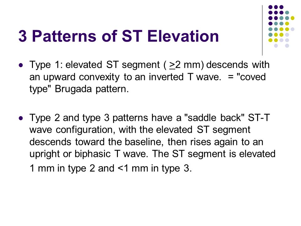 3 Patterns of ST Elevation Type 1: elevated ST segment ( >2 mm) descends with an upward convexity to an inverted T wave.