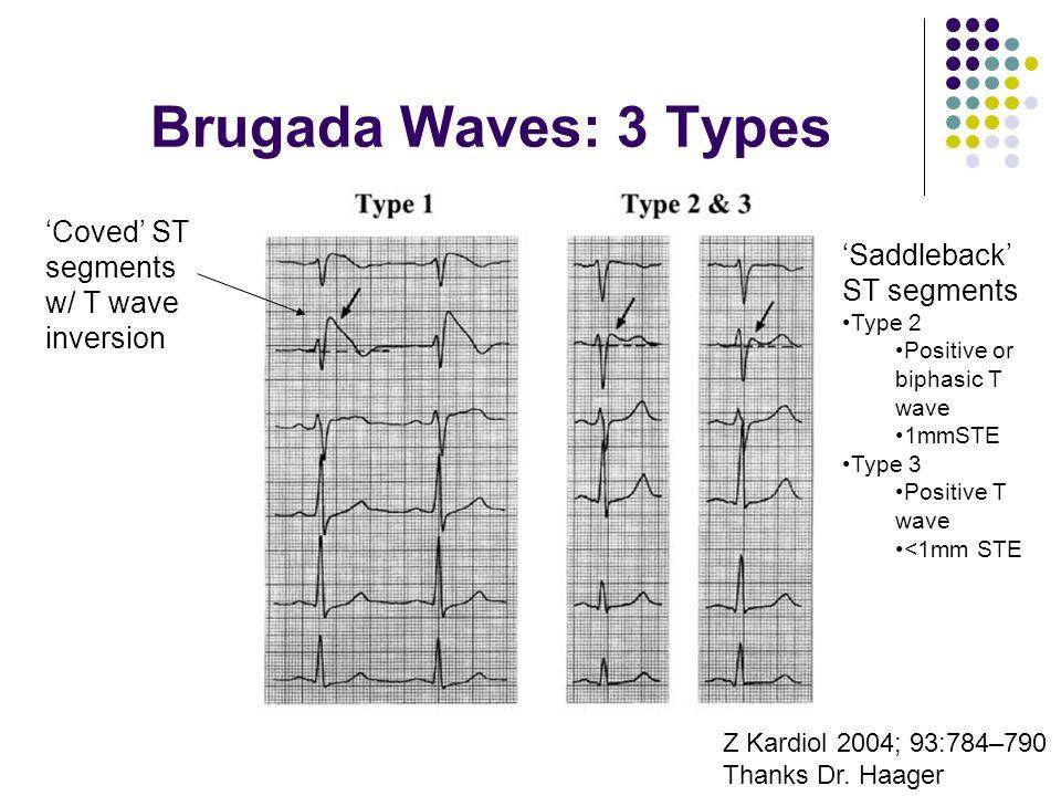 Brugada Waves: 3 Types Z Kardiol 2004; 93:784–790 Thanks Dr. Haager Coved ST segments w/ T wave inversion Saddleback ST segments Type 2 Positive or bi