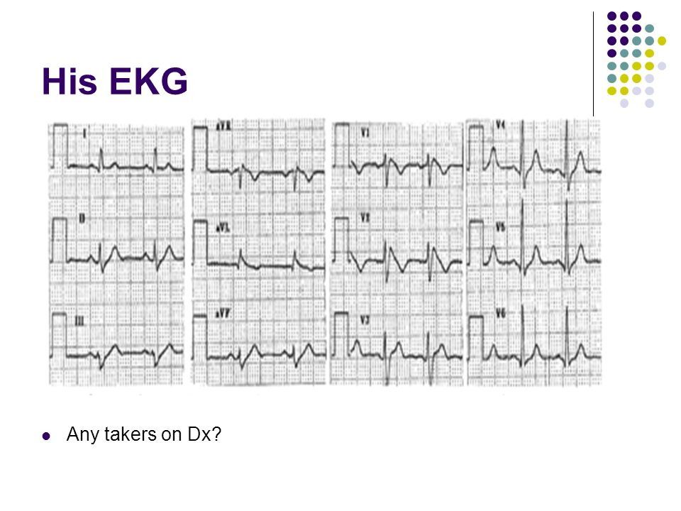 His EKG Any takers on Dx