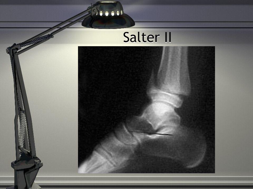 Salter II