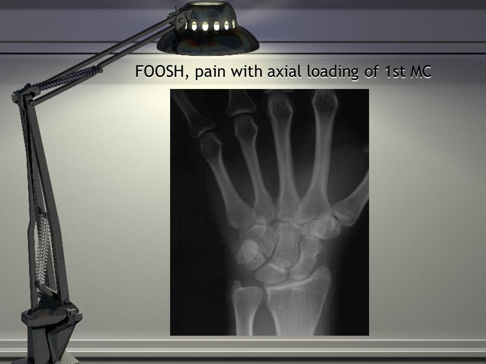 FOOSH, pain with axial loading of 1st MC
