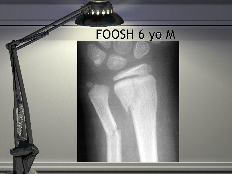 FOOSH 6 yo M