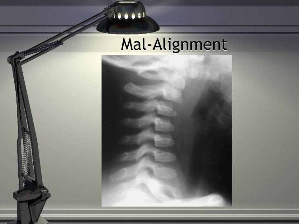 Mal-Alignment
