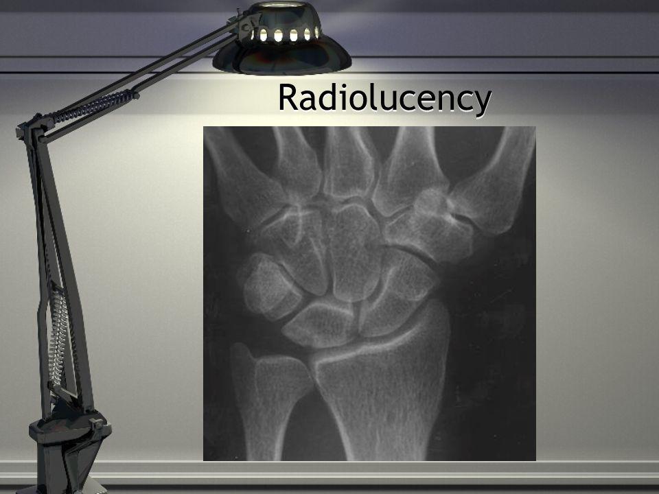 Radiolucency