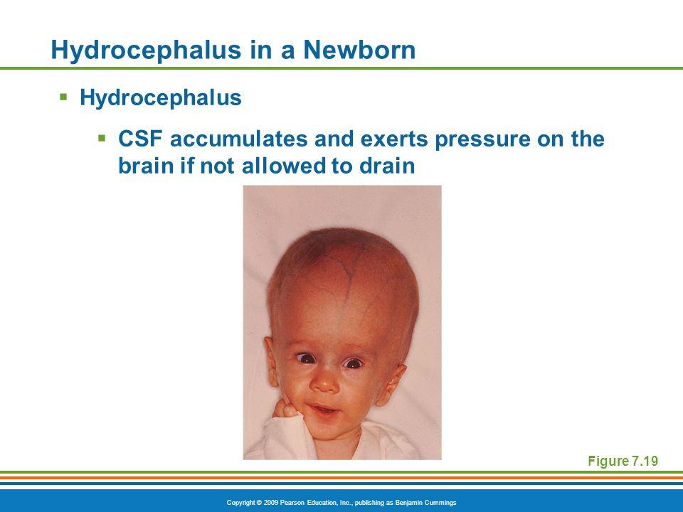 Copyright © 2009 Pearson Education, Inc., publishing as Benjamin Cummings Hydrocephalus in a Newborn Hydrocephalus CSF accumulates and exerts pressure