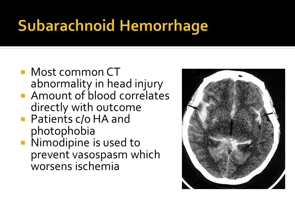 Most common CT abnormality in head injury Amount of blood correlates directly with outcome Patients c/o HA and photophobia Nimodipine is used to preve