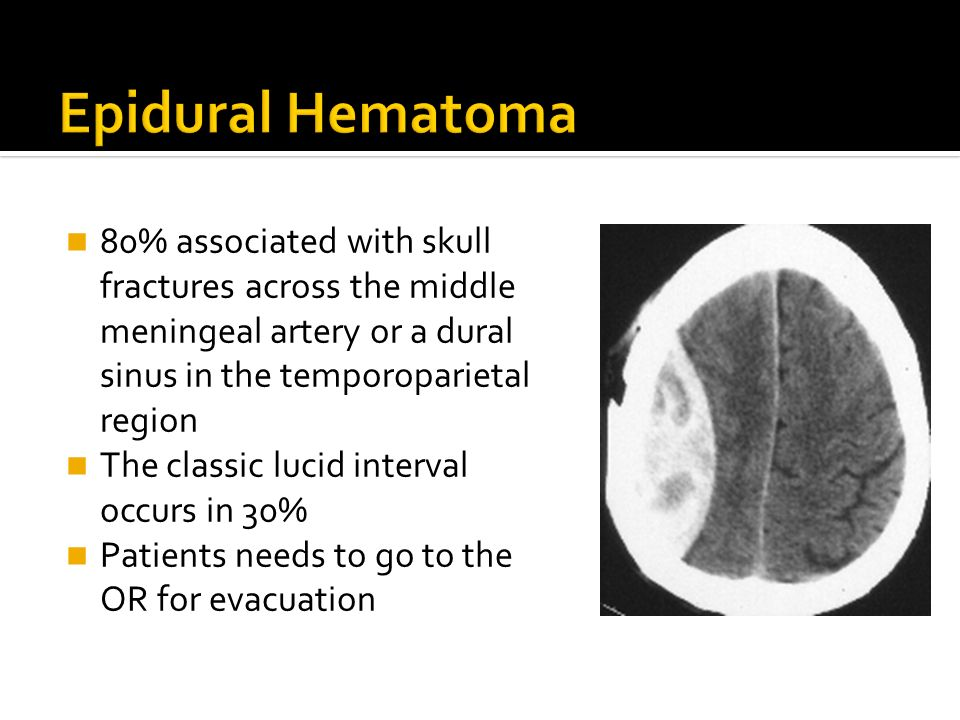 80% associated with skull fractures across the middle meningeal artery or a dural sinus in the temporoparietal region The classic lucid interval occur