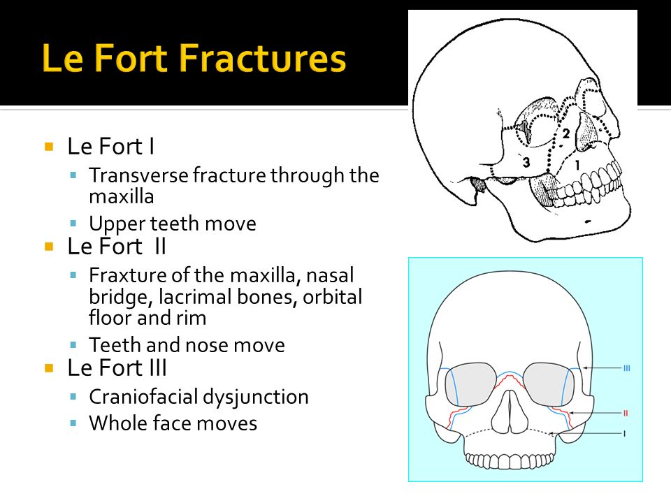 Le Fort I Transverse fracture through the maxilla Upper teeth move Le Fort II Fraxture of the maxilla, nasal bridge, lacrimal bones, orbital floor and