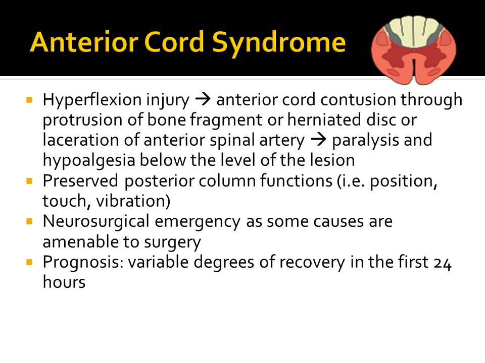 Hyperflexion injury anterior cord contusion through protrusion of bone fragment or herniated disc or laceration of anterior spinal artery paralysis an