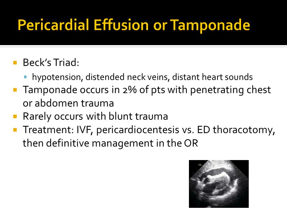 Becks Triad: hypotension, distended neck veins, distant heart sounds Tamponade occurs in 2% of pts with penetrating chest or abdomen trauma Rarely occ