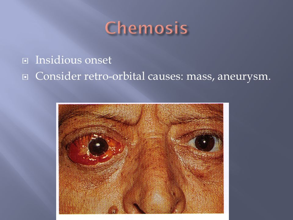 Insidious onset Consider retro-orbital causes: mass, aneurysm.