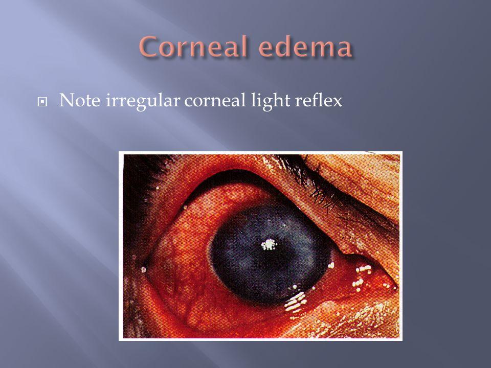 Note irregular corneal light reflex