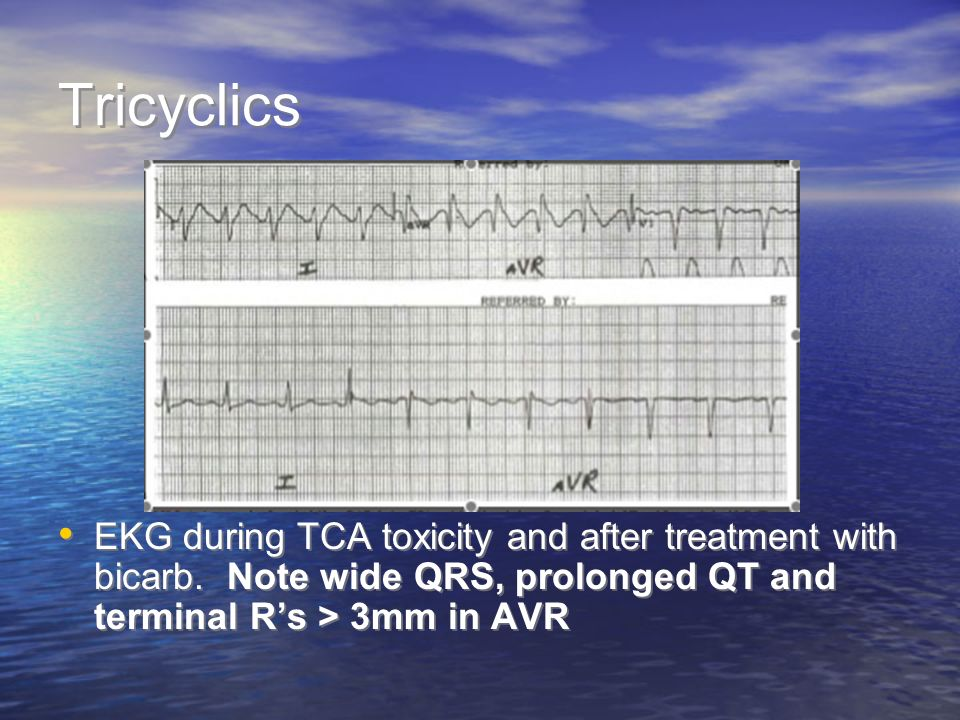 Tricyclics EKG during TCA toxicity and after treatment with bicarb. Note wide QRS, prolonged QT and terminal Rs > 3mm in AVR