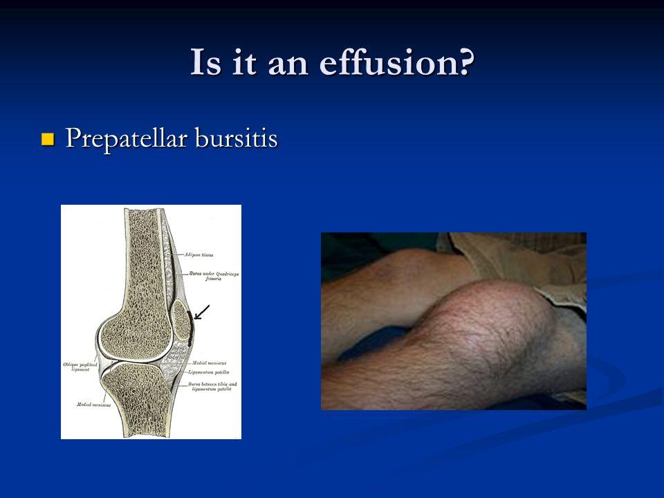 Is it an effusion? Prepatellar bursitis Prepatellar bursitis