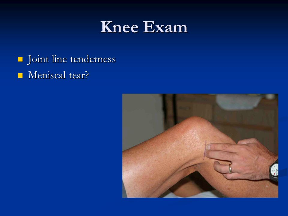 Knee Exam Joint line tenderness Joint line tenderness Meniscal tear? Meniscal tear?
