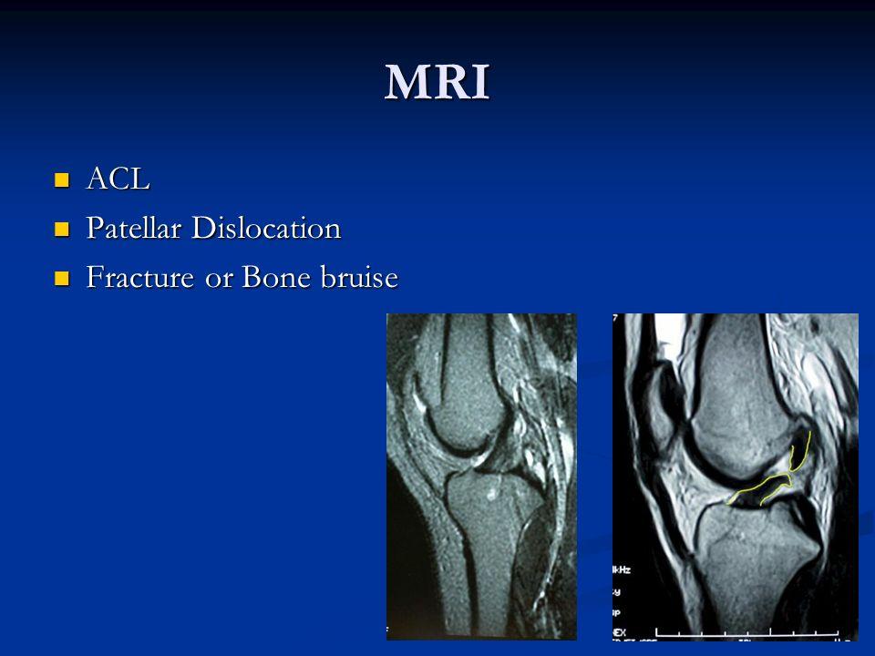 MRI ACL ACL Patellar Dislocation Patellar Dislocation Fracture or Bone bruise Fracture or Bone bruise