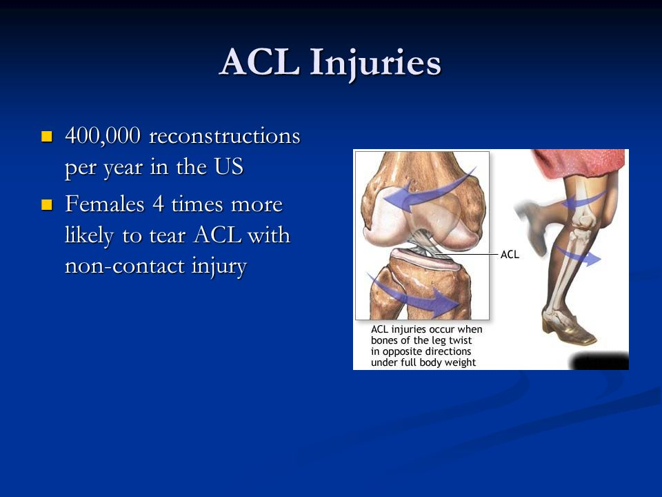 ACL Injuries 400,000 reconstructions per year in the US 400,000 reconstructions per year in the US Females 4 times more likely to tear ACL with non-co