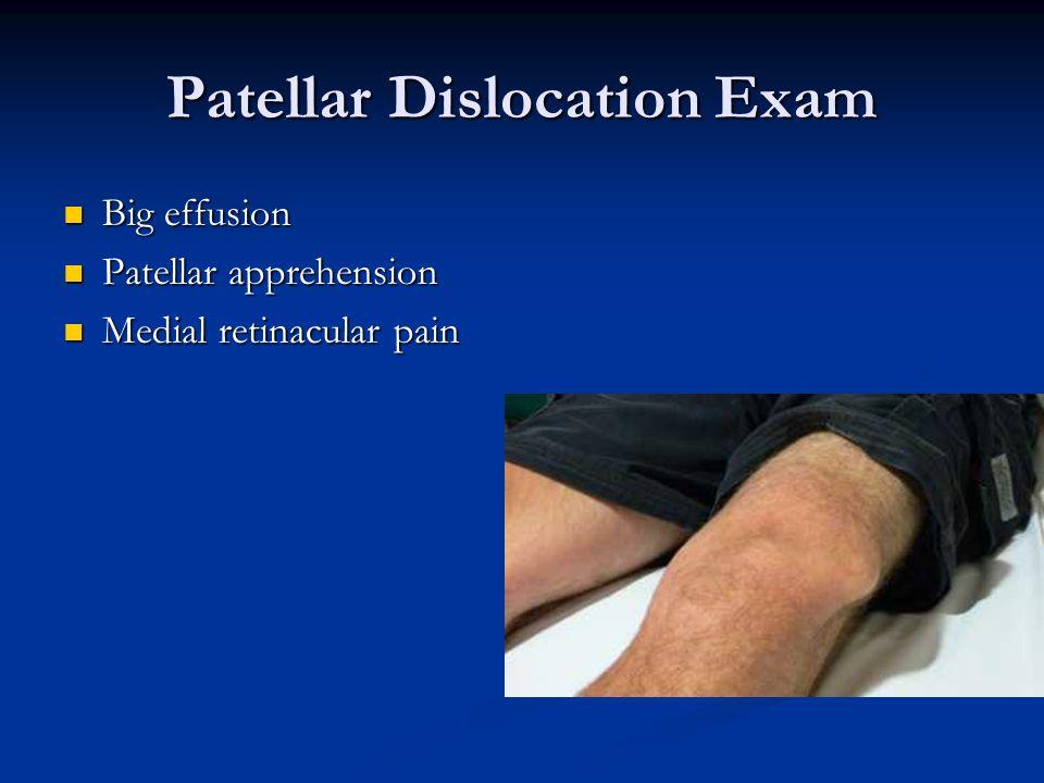 Patellar Dislocation Exam Big effusion Big effusion Patellar apprehension Patellar apprehension Medial retinacular pain Medial retinacular pain