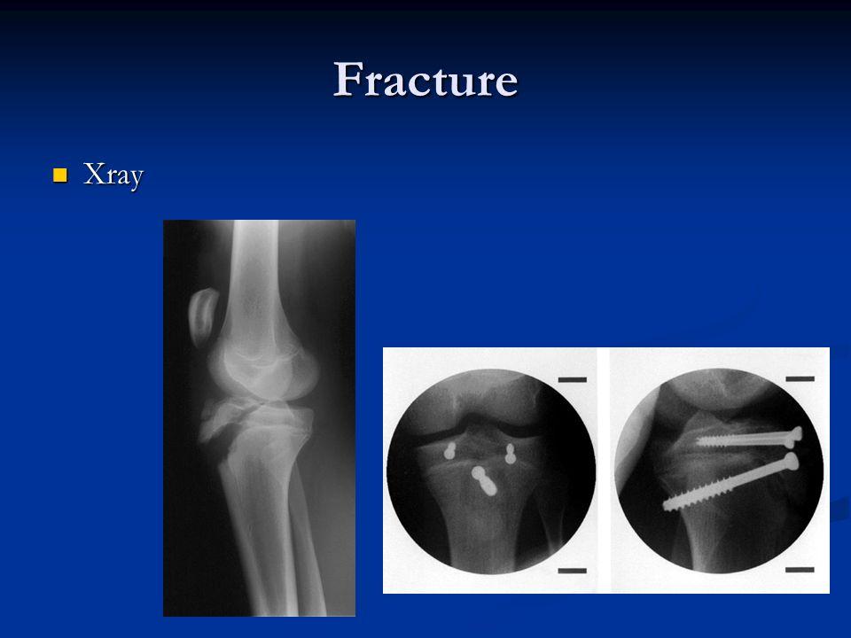 Fracture Xray Xray