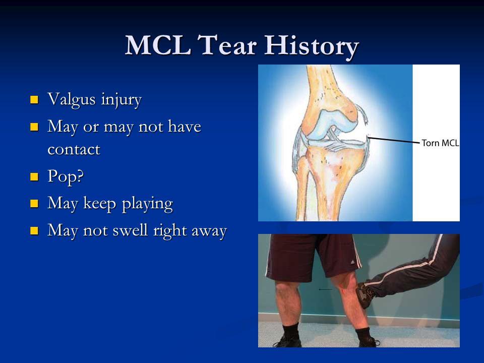 MCL Tear History Valgus injury Valgus injury May or may not have contact May or may not have contact Pop? Pop? May keep playing May keep playing May n