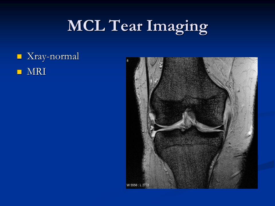 MCL Tear Imaging Xray-normal Xray-normal MRI MRI