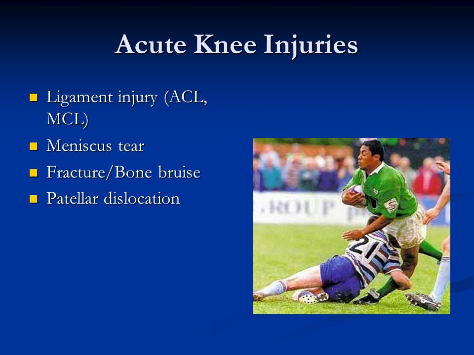 Acute Knee Injuries Ligament injury (ACL, MCL) Ligament injury (ACL, MCL) Meniscus tear Meniscus tear Fracture/Bone bruise Fracture/Bone bruise Patell