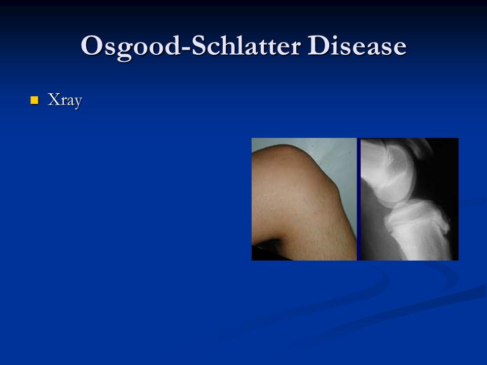 Osgood-Schlatter Disease Xray Xray
