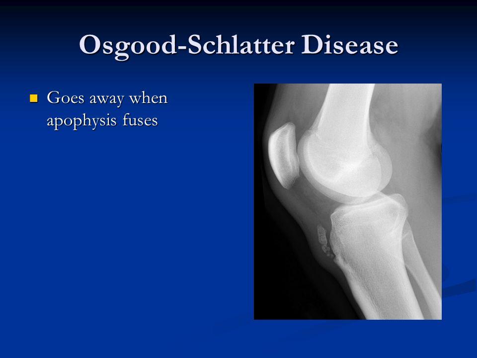 Osgood-Schlatter Disease Goes away when apophysis fuses Goes away when apophysis fuses