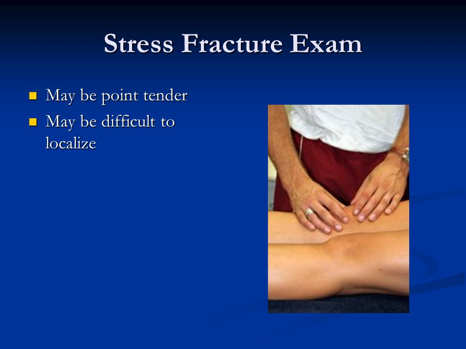 Stress Fracture Exam May be point tender May be point tender May be difficult to localize May be difficult to localize
