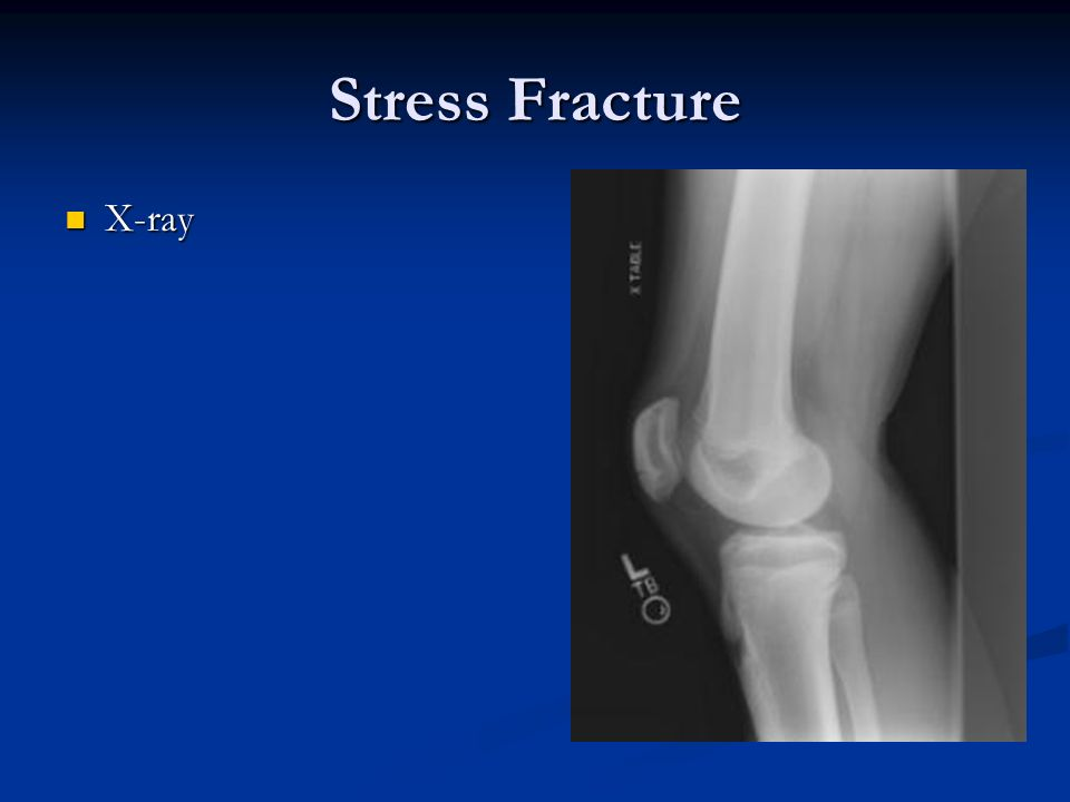 Stress Fracture X-ray X-ray