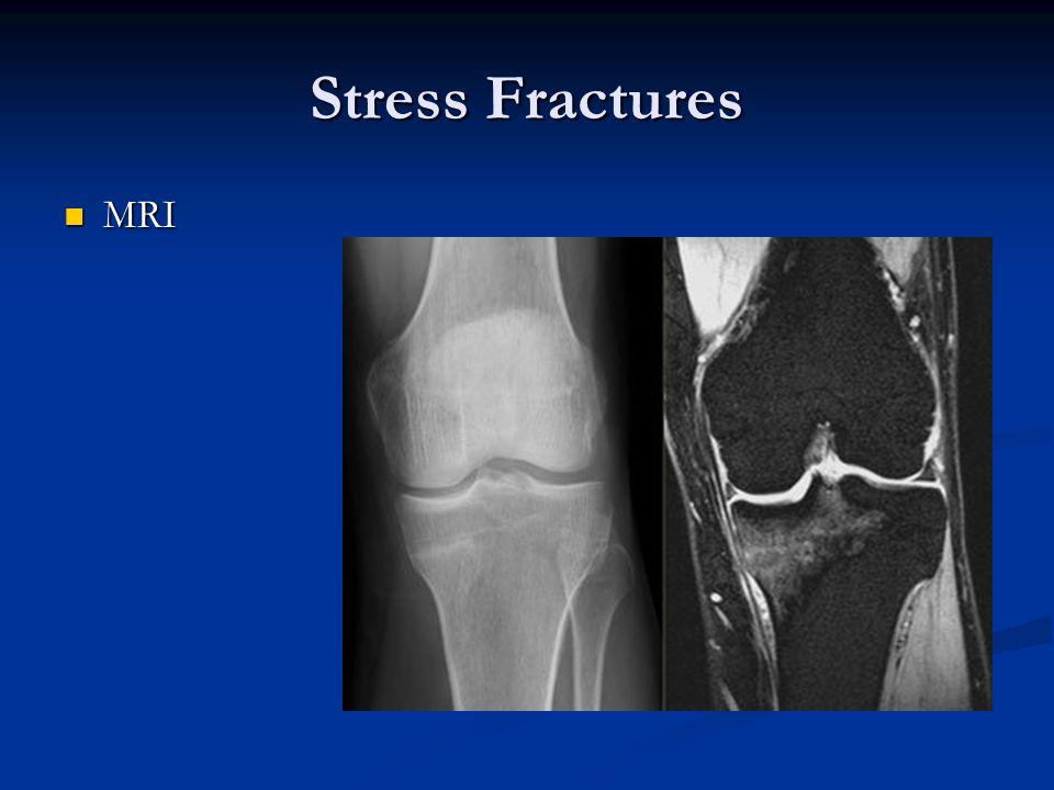 Stress Fractures MRI MRI